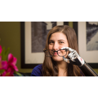 Steeper BeBionic Prosthetic Hand